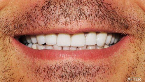 Crooked teeth After Image
