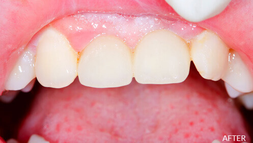 Dental crowns After Image