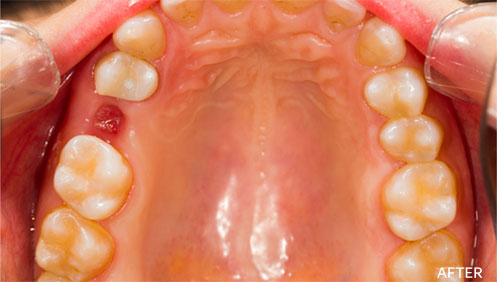 Teeth extractions After Image