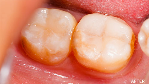 Teeth fillings After Image