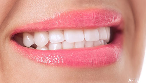 Orthodontic braces After Image