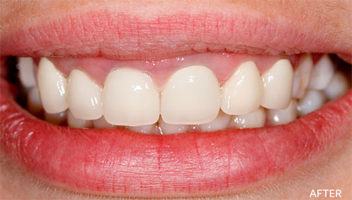 Gum disease After Image