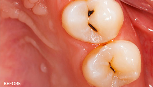 Teeth cleaning Before Image