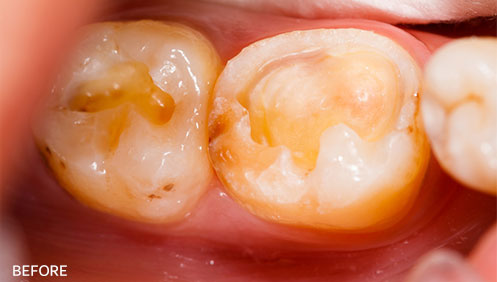 Teeth fillings Before Image