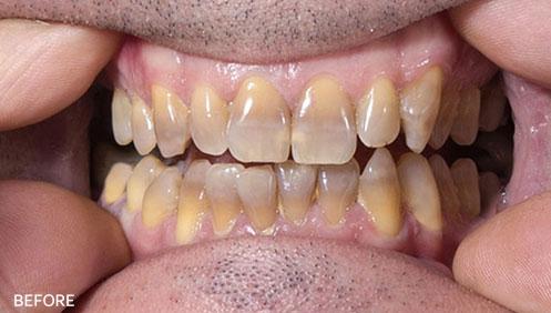 Teeth whitening Before Image