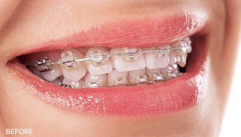 Orthodontic braces Before Image