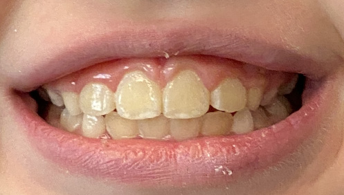 After results of Orthodontics Mississauga ON