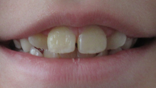 Before results of Orthodontics Mississauga ON