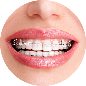 Orthodontics Service at Huron Dental Centre Mississauga, Ontario