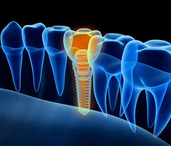 After dental implants treatment: Mississauga, ON dentist shares care tips