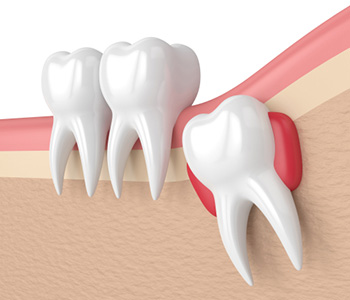 Mississauga, ON dentist describes the importance of removing impacted wisdom teeth